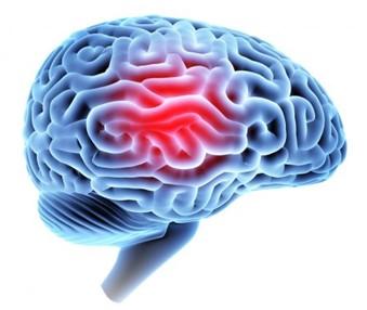 Treatment of traumatic brain