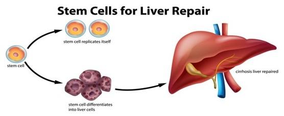 Stem Cells for Liver Diseases